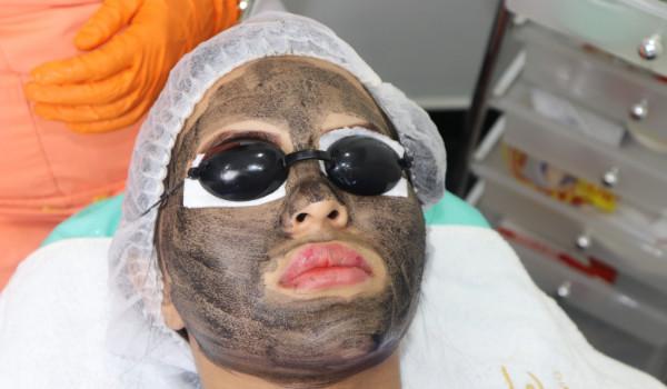 Porcelaniza tu piel con BLACKPEEL